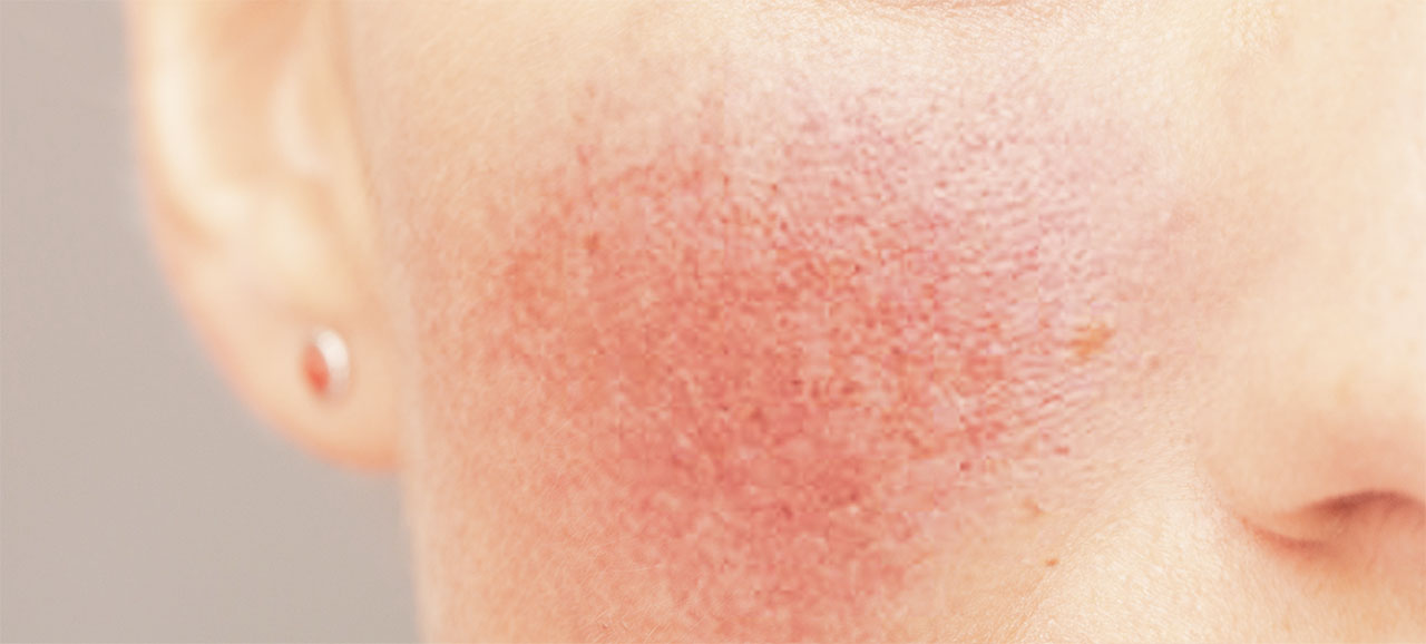 Acne Rosacea - Fighting with rosacea