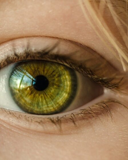 Get rid of puffy eyes - Home remedies to prevent puffy eyes