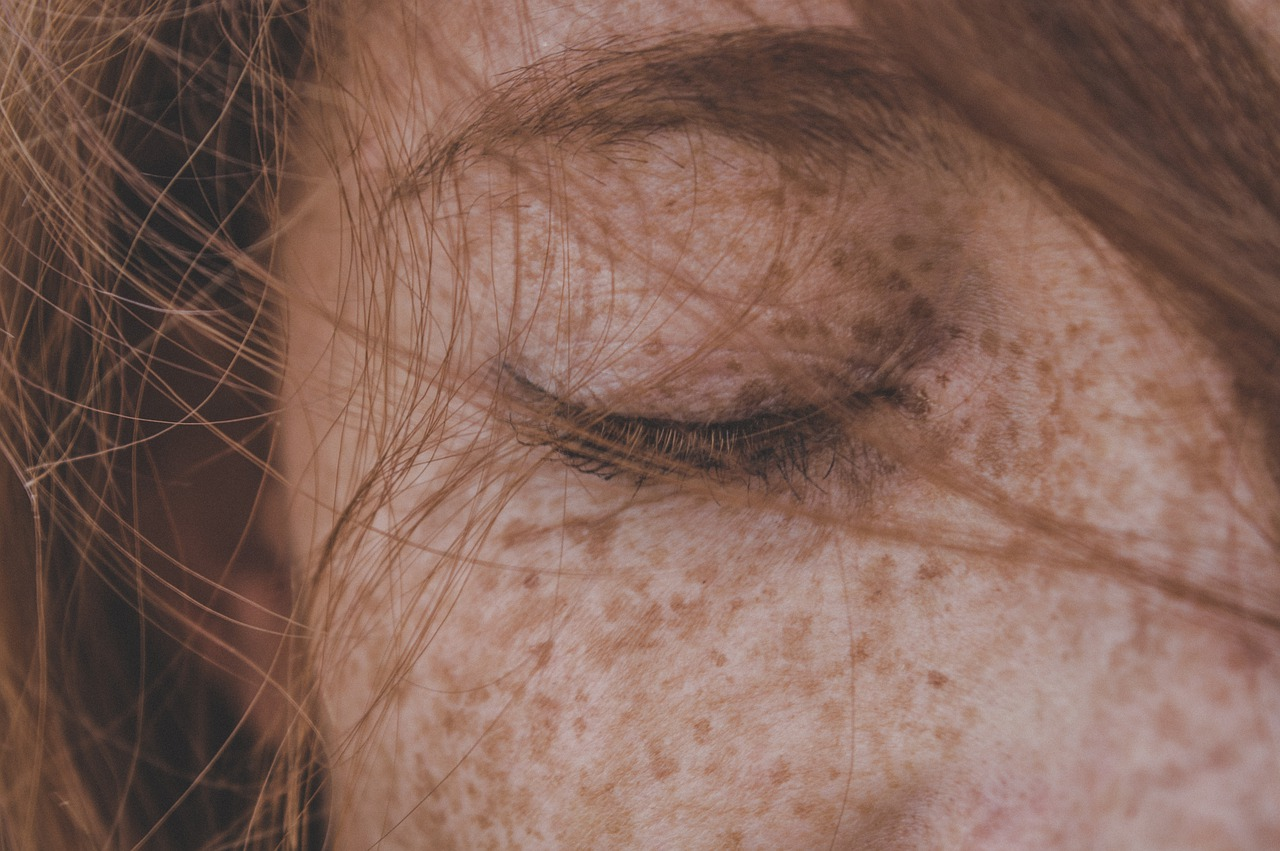 Remove Freckles - Getting rid of freckles